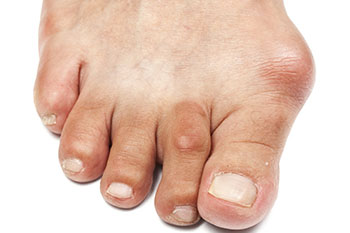 bunions treatment in the Bellaire, TX 77401 area