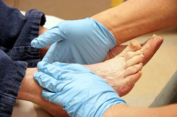 diabetic foot treatment in the Bellaire, TX 77401 area