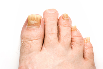 fungus toenails treatment in the Bellaire, TX 77401 area