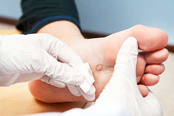 Plantar warts treatment in the Bellaire, TX 77401 area
