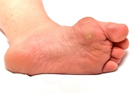 What Causes a Bunion to Develop?