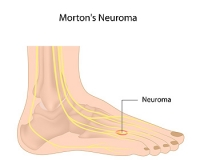 Nerve Damage May Lead to Morton's Neuroma