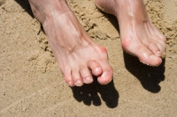 Impacts of Rheumatoid Arthritis on the Feet