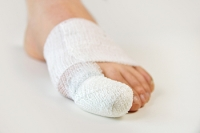How Are Broken Toes Treated?