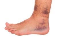 Possible Reasons for Foot and Ankle Trauma