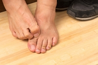 Can Athlete's Foot Be Prevented?
