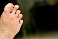 What Is Cryotherapy for Foot Warts?